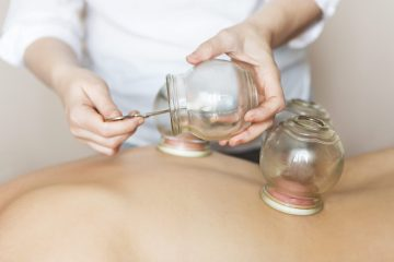 Traditional Chinese Fire Cupping